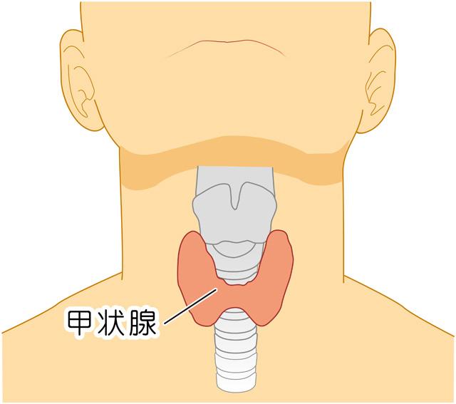 原因 甲状腺 腫瘍