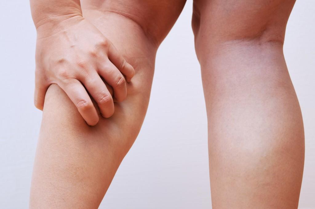 下肢静脈瘤の初期症状?夕方の足...