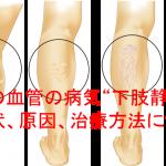 名医が教える下肢静脈瘤の症状・原因・治療方法