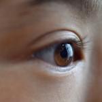 円錐角膜って何?眼科医が教える原因・症状・治療方法