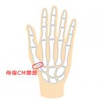 手首・親指の付け根が痛い「母指CM関節症」の原因・症状・治療方法|医師が解説