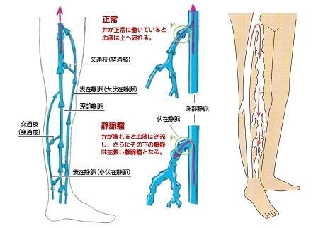 下肢静脈瘤の症状、治療、手術について | 神奈川県藤沢市湘南 ...